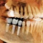 Plymouth Dental Implant Dentists